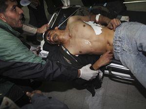 Zraněný Palestinec v pásmu Gazy po izraelském útoku.