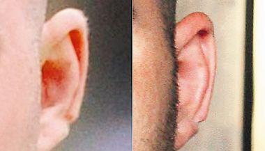 Ucho Martina Hofmana vyřízlé z obou fotografií. Na boltci je patrná charakteristická