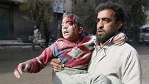 Válka v Aleppu. Muž odnáší do bezpečí zraněného chlapce.