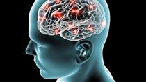Mozek (ilustra�ní foto) | na serveru Lidovky.cz | aktu�ln� zpr�vy