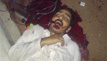 Mrtvola muže z místa zásahu Navy SEAL proti bin Ládinovi v Abbottábádu.