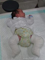 Čerstvě zasádrované miminko.